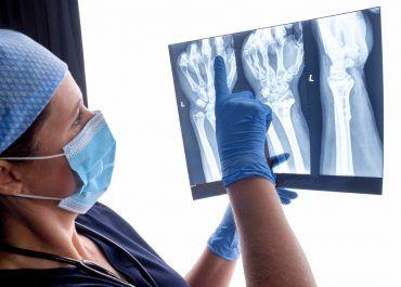 Participe en el 58° Congreso español de cirugía ortopédica y traumatología